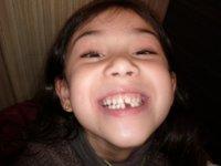 tooth 3.jpg
